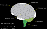 Example of a brain scan. Post concussion syndome