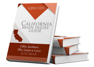 A Guide to Traumatic Brain Injury Lawsuits in California